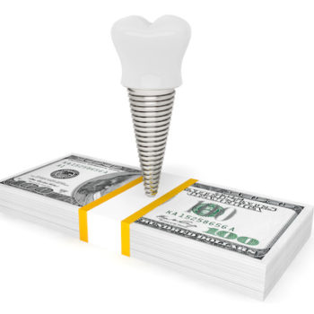 Cost of dental concept. Tooth Implant With Money on a white background
