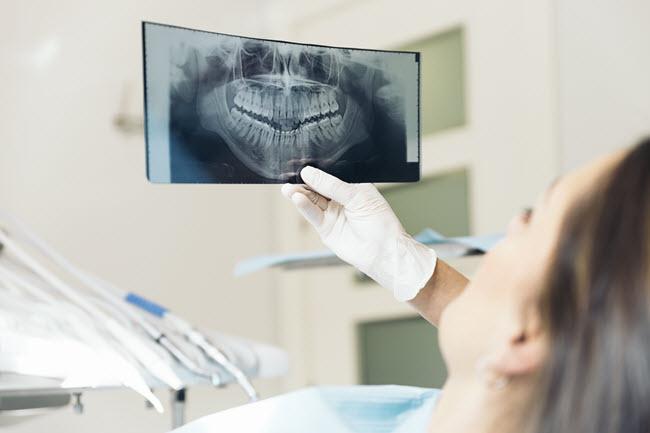 What Happens If I Don T Get Dental Implants Bay Area Dental Implants