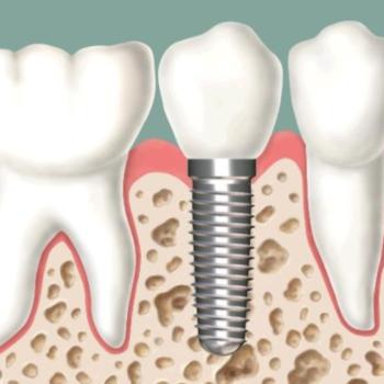 dental-implant-image